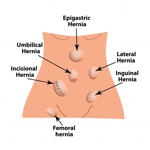 Children Hernia Treatment in Dubai